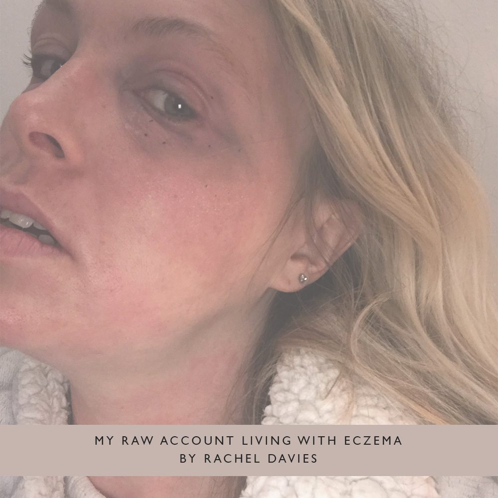 Pink-Link-Member-Blog-My-raw-account-living-with-eczema-by-Rachel-Davies